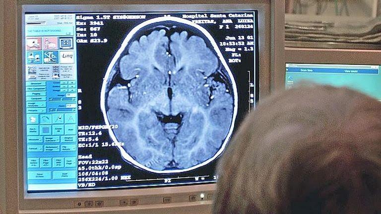 SAO PAULO, BRAZIL: A doctor examines the results of a patient's MRI in Sao Pauol, Brazil 22 November 2001. Un especialista en resonancia magnetica nuclear del Hospital Santa Catarina (en primer plano), en Sao Paulo, Brasil, observa el 22 de noviembre de 2001 el resultado de la tomografia cerebral de un nino (al fondo, sobre la camilla) en una pantalla de computadora, en una sala protegida con blindaje especial contra las radiaciones electromagneticas . A raiz del exceso de radiaciones electromag